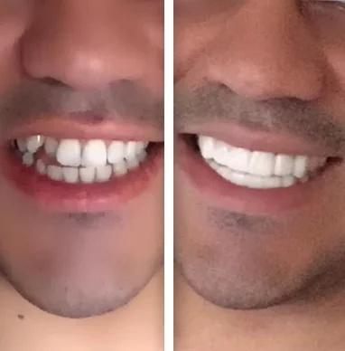 perfect smile veneers instructions