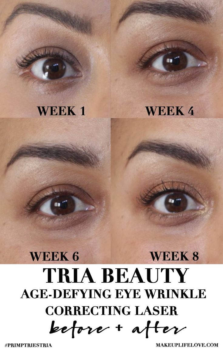 tria eye laser instructions