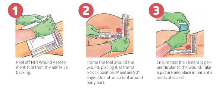 point click care instructions