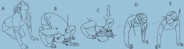epley maneuver instructions patient handout