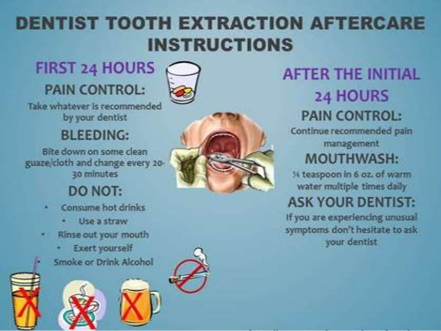 post operative instructions after tooth extraction