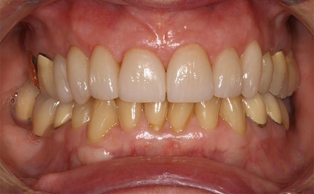 dental implant home care instructions