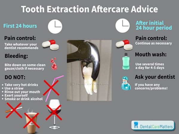after tooth extraction care instructions