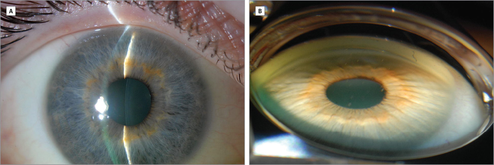 canadian journal of ophthalmology instructions for authors
