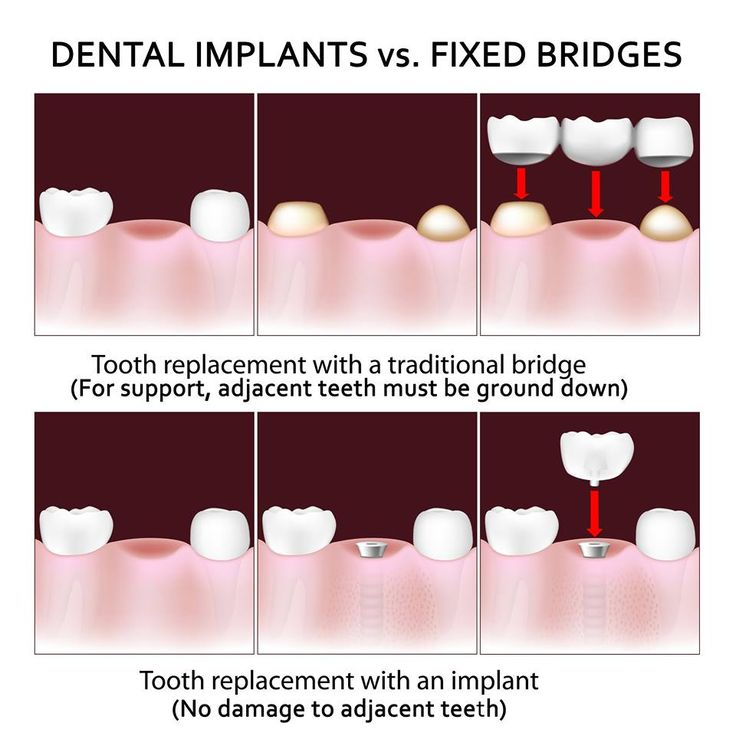 dental crown care instructions
