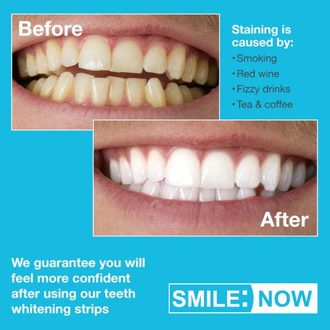 smile care club whitening instructions